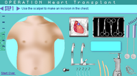 Operation Heart Transplant