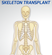 Skeleton Transplant